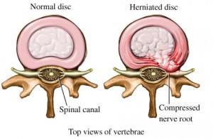 disc hernia 2